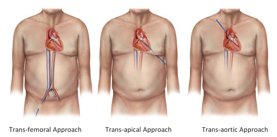 Transcatheter Aortic Valve Replacement System Market