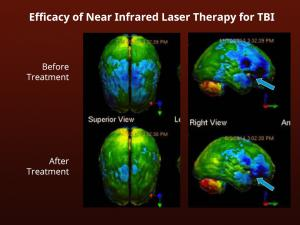 This chart shows brain damage can be reversed with a new treatment from Neuro-Laser Foundation.