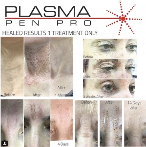 Plasma Pen Pro Eyelid Lift Before and After Results