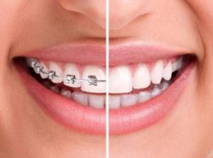 invisalign and braces in Reading, PA