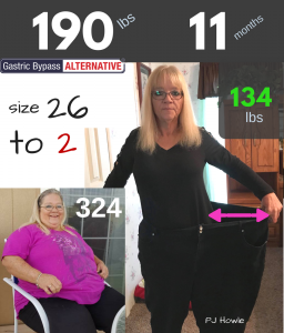 PJ lost 190 lbs WITHOUT bariatric surgery (11 months $7.5 per lb lost).png