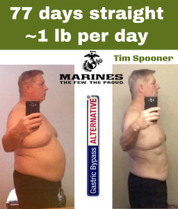 On my his way to a healthy weight - Tim Spooner using the Gastric Bypass ALTERNATIVE by Don Karl Juravin